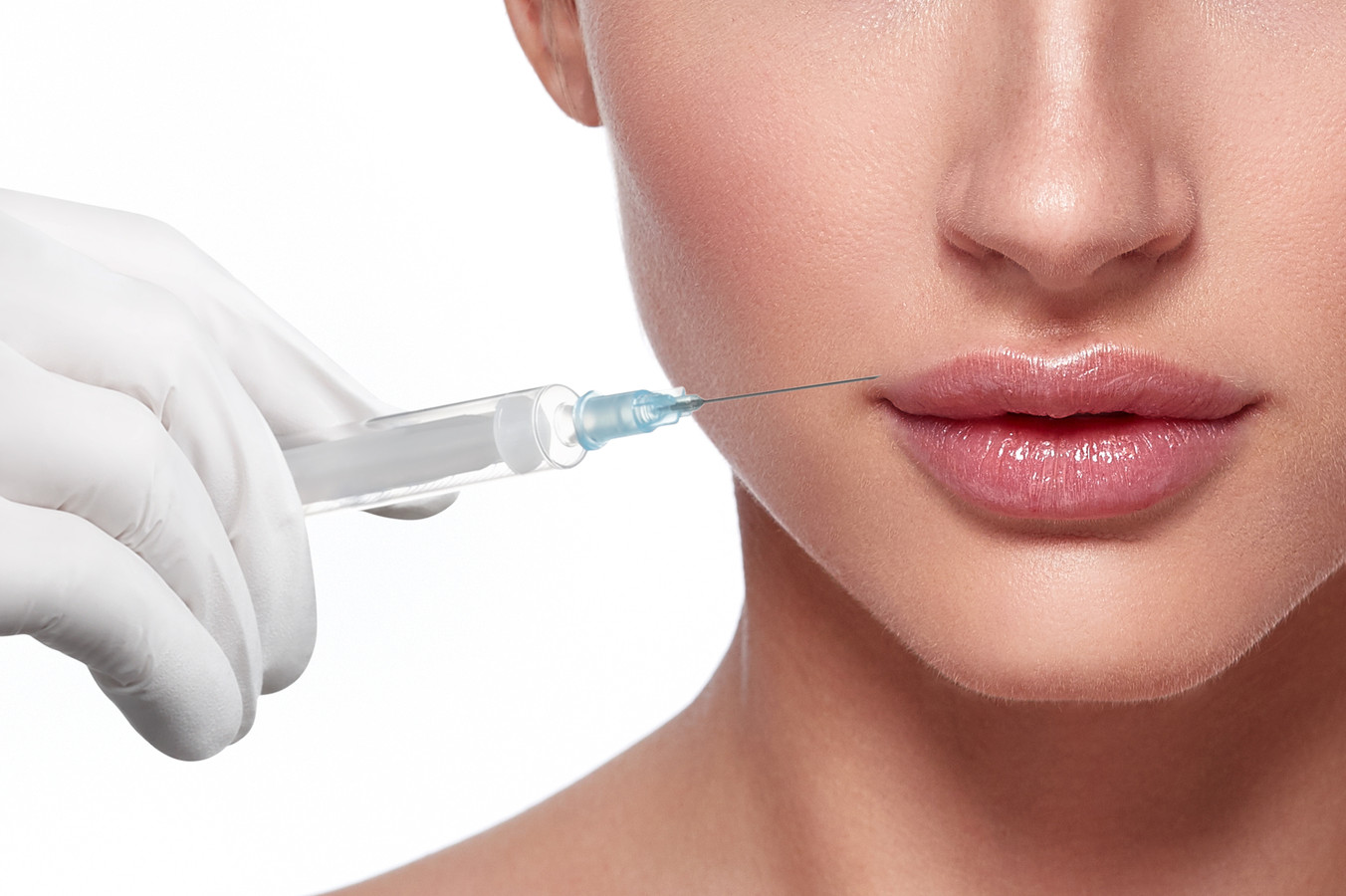Dermal Fillers injected into the skin to reduce facial lines and restore volume and fullness in the face.