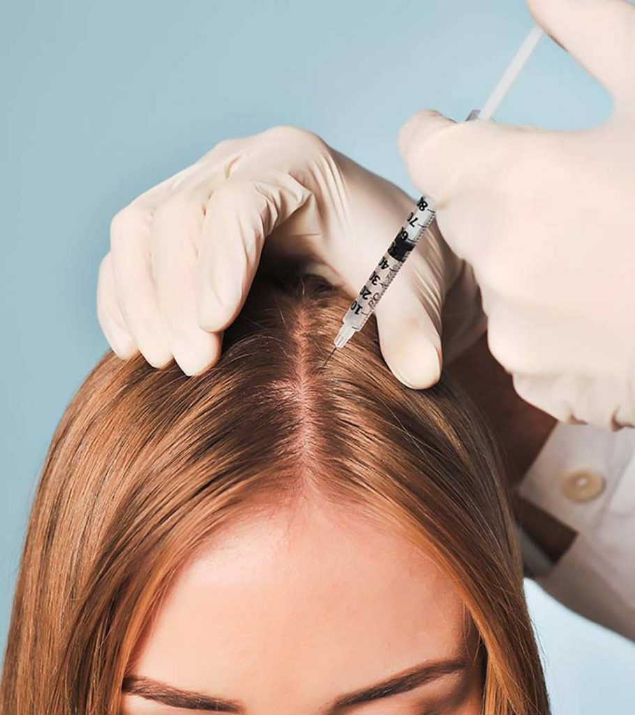 A women doing Mesotherapy treatment method to prevent hair loss
