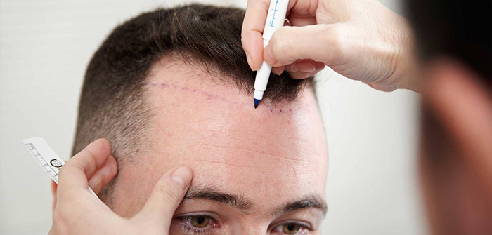 Marking bald area with sketch pen for hair transplantation treatment